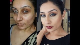 Acne scaring rosacea Foundation routine Indian Olive skin tone|| Raji Osahn