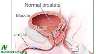 Velikost prostaty a vliv stravy