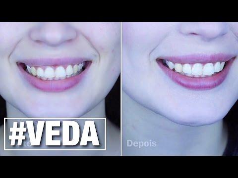 Clarear Os Dentes Com Acafrao Da Certo Veda 17 Youtube
