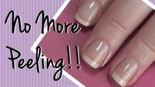 How I Fixed My Peeling Nails!  Nail Care Video by ArcadiaNailArt
