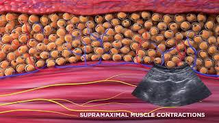 Emsculpt® - MOA - buttocks and abdomen area