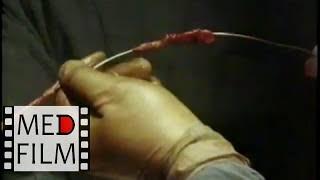 Трофические язвы нижних конечностей © Venous leg ulcers