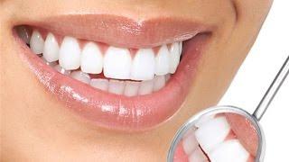 Виниры на зубы(Подпишитесь на канал