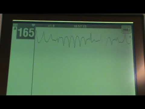 Download Telemetry Rhythms Explained