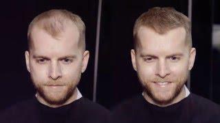 How to conceal thin blonde hair  MR. JAMIE STEVENS
