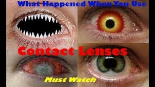 What Happened When you use Contact Lenses🙄 Improve Your Vision #short#