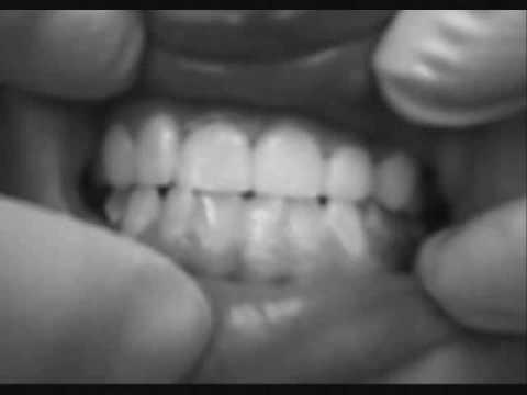 Oceanside Dental Tampa 813-998-0000 www.oceansidedentalfl.com