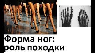 Форма ног: роль походки. Откуда красивые ноги