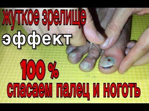 Как лечить синяк под ногтем на ноге