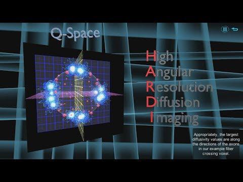 MRillustrated - Diffusion 3: HARDI & Q-Balls