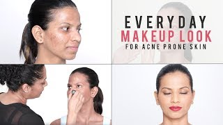 How To Makeup Look For Problematic & Acne Prone Skin   Everyday Makeup Tutorial For Beginners