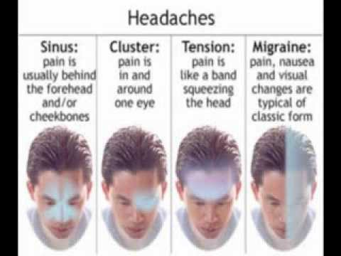 Types of Headaches  their Natural Remedies  YouTube