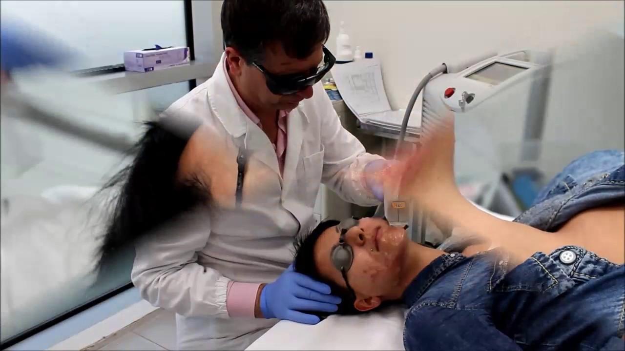 Trattamento dell'acne attiva con il laser BBL - YouTube