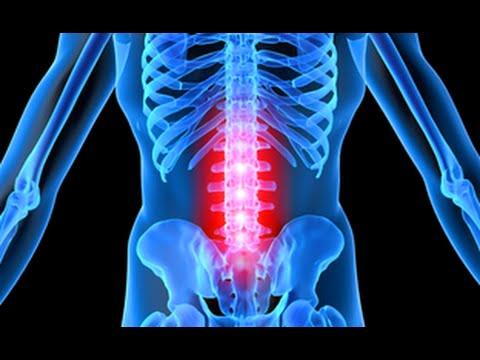 Остеохондроз поясничного отдела как лечить