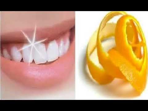 Dahsyat Inilah 14 Cara Memutihkan Gigi Dengan Kulit Jeruk Terbukti