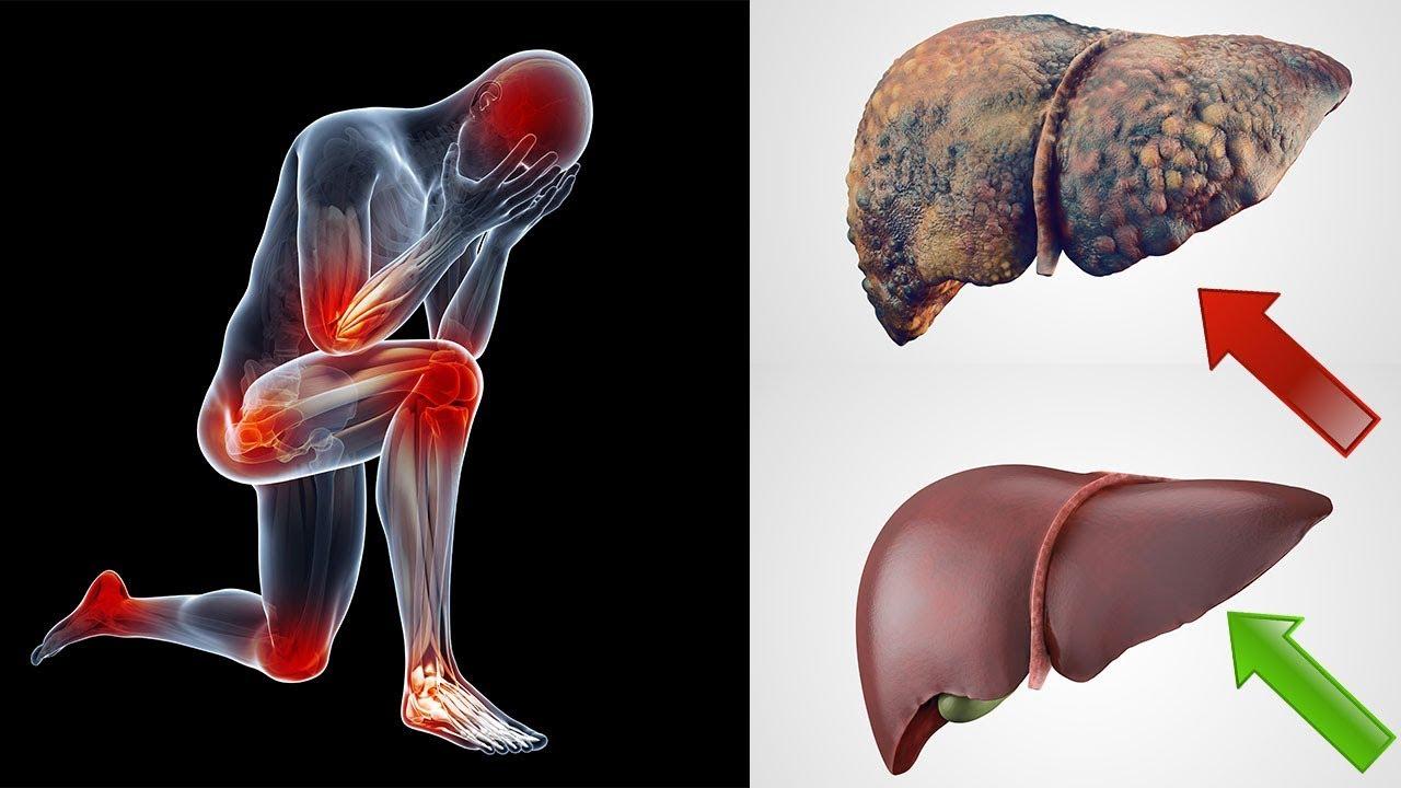5 Warnsignale dafür, dass deine Leber mit Toxinen belastet ist ...