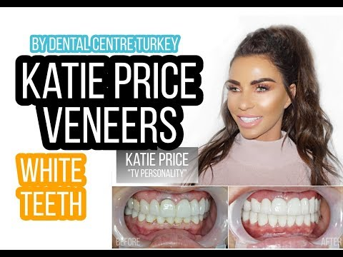 Katie Price visited Dental Centre Turkey | Katie Price's Dentist in Turkey