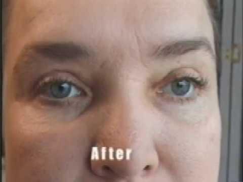 Sydney Blepharoplasty & Eyelid Treatment   Aesthetic Surgery