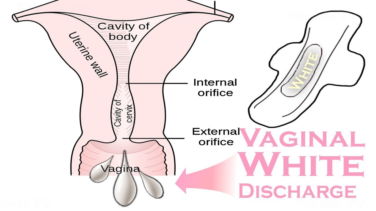 Early Pregnancy Vaginal Discharge