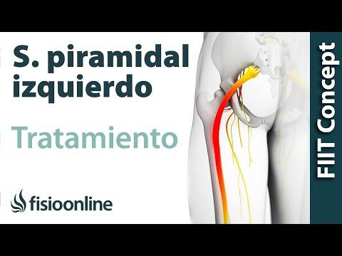 Sindrome del piriforme antiinflamatorio no esteroideo