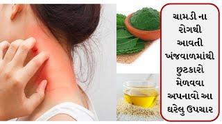 ખસ ખરજવું અને દાદર ના રામ બાણ ઉપાય || eczema || ઘરેલું નુસ્ખા | Ringworm | Health tips and Home Tips