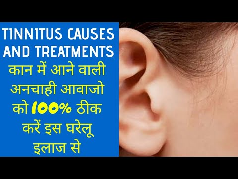tinnitus-causes-and-treatments-with-home-remedies-in-hindi-that-really-work