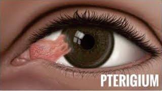 Video ini membahas Penyebab Mata Kering. Mata kering adalah kondisi mata yang tidak cukup pelumasann.