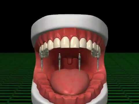 Mini Dental Implants - Dr. Andrea Joy Smith Family Dentistry