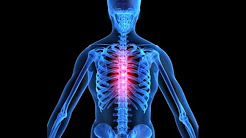 hqdefault - Causes Chronic Thoracic Back Pain