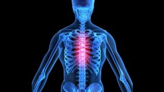 mqdefault - Thoracic Back Pain And Cancer