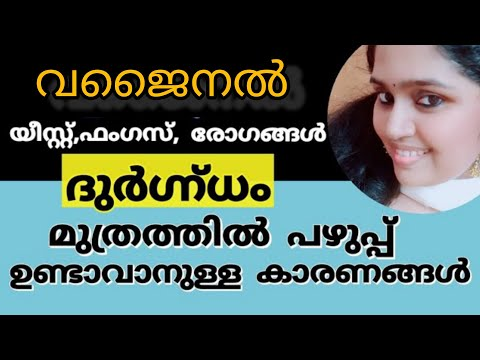 Download Remedies for urinary tract infection in malayalam//Uti tips in malayalam//