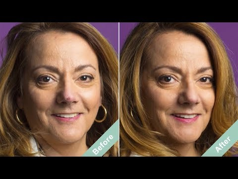 How to Cover a Nose Scar | Conceal Scar after Surgery with
