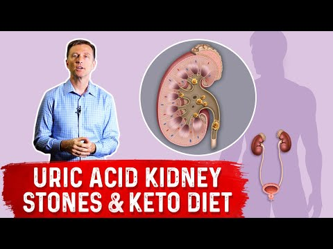 uric-acid-kidney-stones-&-the-ketogenic-diet