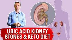 hqdefault - Uric Acid Kidney Stones Type 2 Diabetes