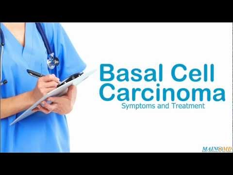 Basal Cell Carcinoma: Symptoms and Treatment