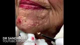 Milia & blackheads TNTC: 1st treatment. For medical education- NSFE.