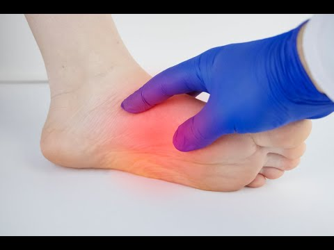 Eva Marie McEwen PA-C Interview about Plantar Faciitis