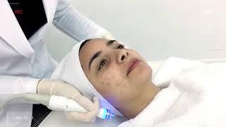 AQUAPUREㅣMy acne problem   ㅣPlease clean up my skin!