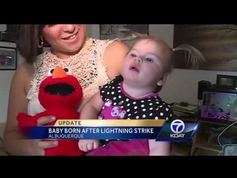 Baby struck by lightning recovering, has static hair