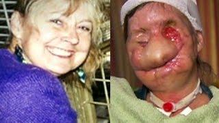 Carla Nash: Un Chimpancé devoró su cara. (Historia real)