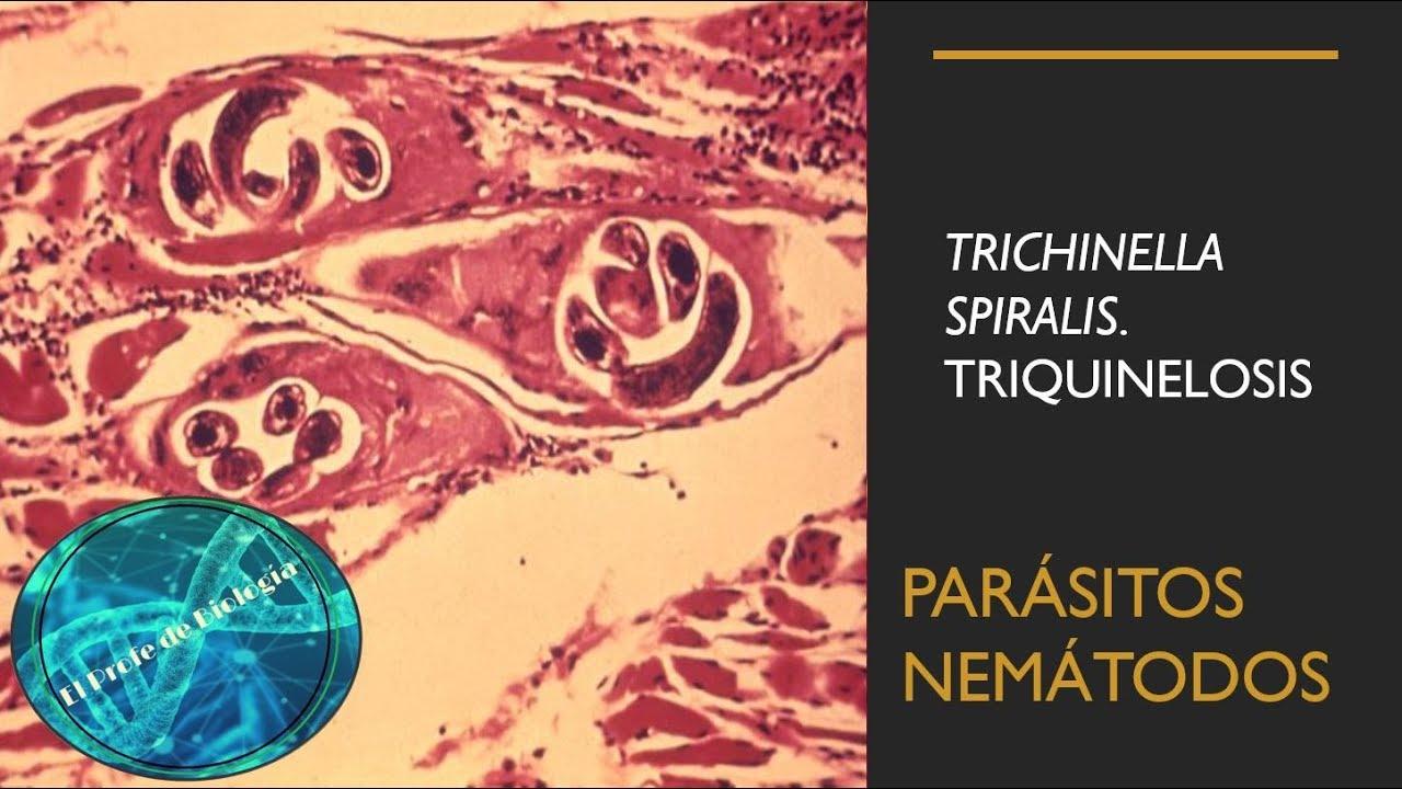 Trichinella és Rishta)