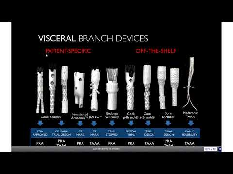 FEVAR / BEVAR Tips And Tricks: From Sizing To Implantation And Evaluation