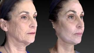 Facelift 3D Before and After-11