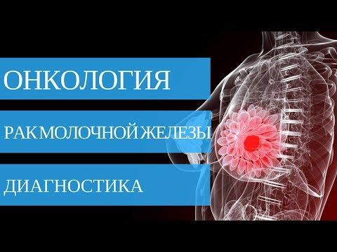 РАК МОЛОЧНОЙ ЖЕЛЕЗЫ - диагностика заболевания