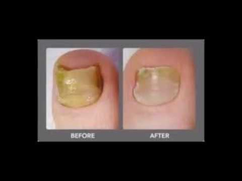 Young Living And Japanese Toenail Fungus Code
