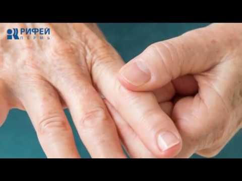здоровье артрит отдалились
