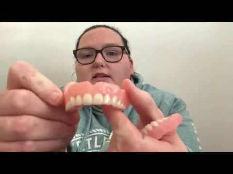 Comparing my temporary dentures | Why I went to affordable dentures