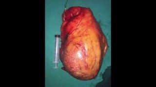 Ρομποτική Ριζική Νεφρεκτομή σε όγκους άνω των 12 εκατοστών