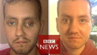 '3D printer helped rebuild my face' - BBC News