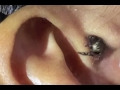 LIVE BUGS IN NOSE EAR BEST COMPILATION mp3